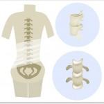 変形性腰痛症とは?起き抜けに強い腰痛がありつつもそのうち治るという人は要注意